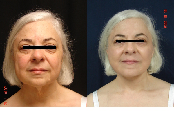 facelift-before-and-after-1-virginia-beach-plastic-surgeon-VA-106-JSJ
