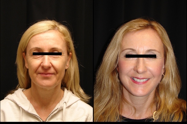 facelift-before-and-after-1-virginia-beach-plastic-surgeon-VA-107-JSJ
