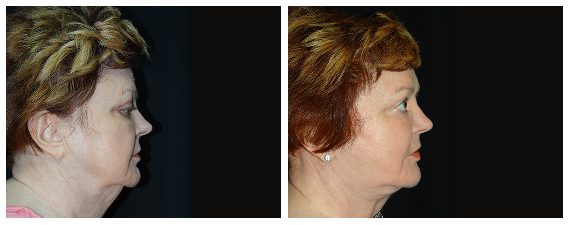 facelift-before-and-after-2-virginia-beach-plastic-surgeon-VA-0105-denk