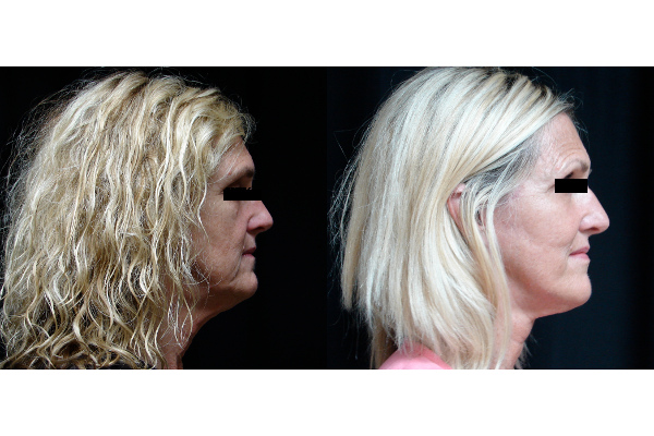facelift-before-and-after-2-virginia-beach-plastic-surgeon-VA-101-JSA