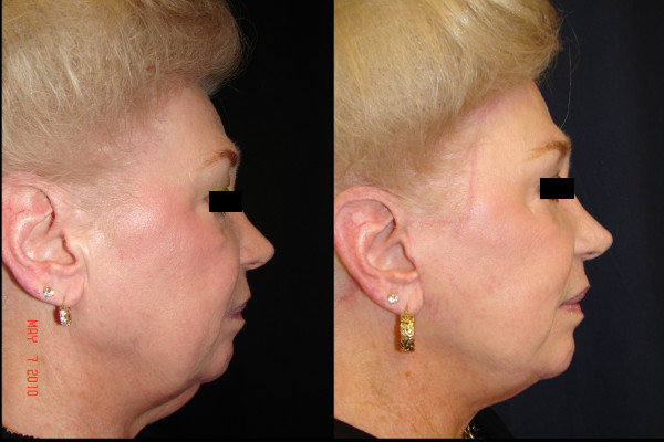 facelift-before-and-after-2-virginia-beach-plastic-surgeon-VA-101-denk
