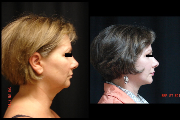 facelift-before-and-after-2-virginia-beach-plastic-surgeon-VA-102-JSA