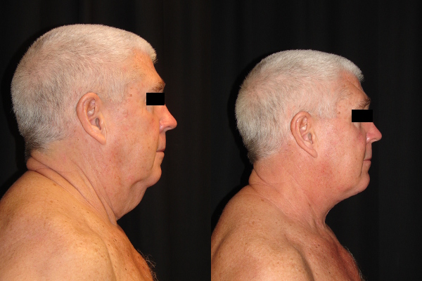 facelift-before-and-after-2-virginia-beach-plastic-surgeon-VA-103-denk