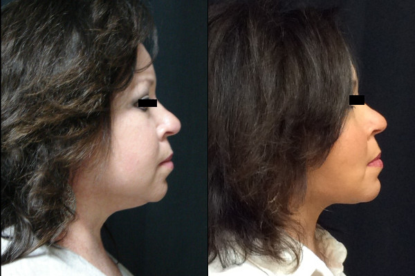 facelift-before-and-after-2-virginia-beach-plastic-surgeon-VA-104-JSA