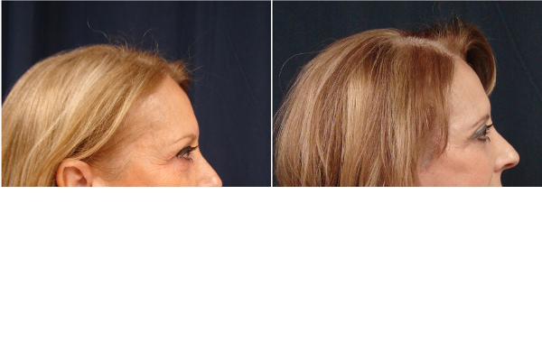 facelift-before-and-after-2-virginia-beach-plastic-surgeon-VA-104-JSJ