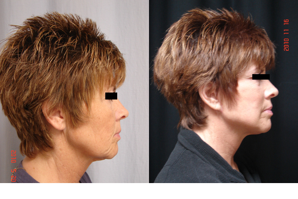 facelift-before-and-after-2-virginia-beach-plastic-surgeon-VA-105-JSJ