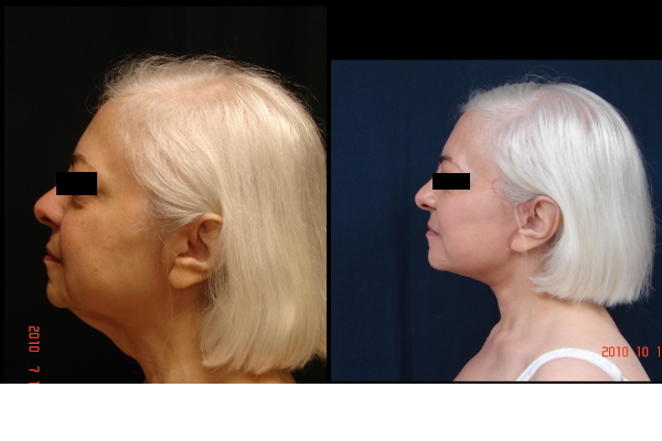 facelift-before-and-after-2-virginia-beach-plastic-surgeon-VA-106-JSJ