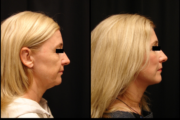 facelift-before-and-after-2-virginia-beach-plastic-surgeon-VA-107-JSJ