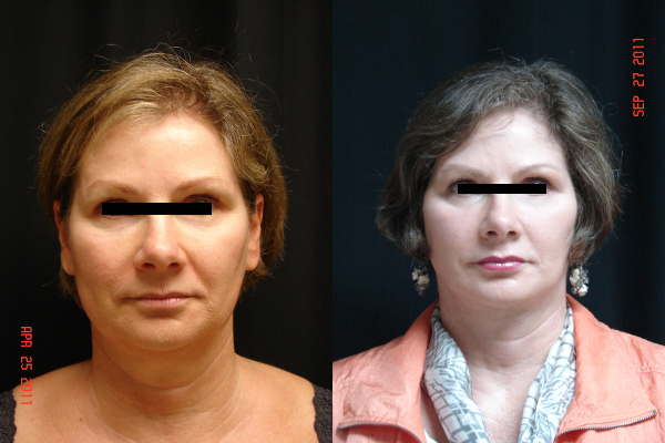 facelift-before-and-after-virginia-beach-plastic-surgeon-VA-102-JSA
