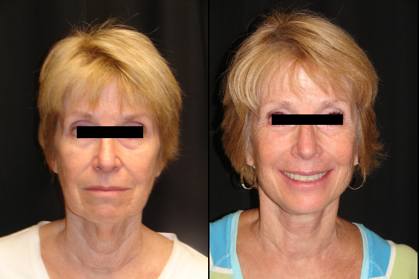 facelift-before-and-after-virginia-beach-plastic-surgeon-VA-102-denk