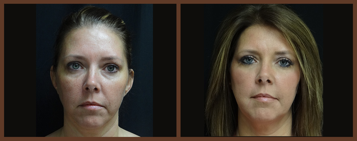 fat-grafting-before-and-after-1-virginia-beach-plastic-surgeon-VA-0161-jacobs