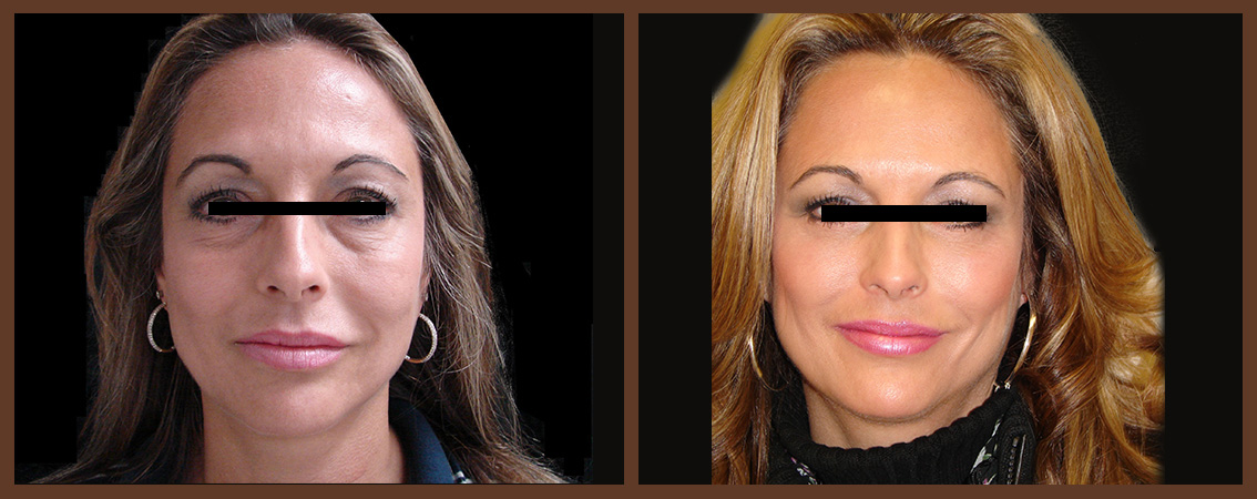 fat-grafting-before-and-after-1-virginia-beach-plastic-surgeon-VA-0162-denk