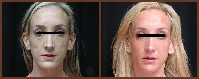 fat-grafting-before-and-after-1-virginia-beach-plastic-surgeon-VA-0163-JSA