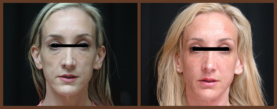 fat-grafting-before-and-after-1-virginia-beach-plastic-surgeon-VA-0163-JSA