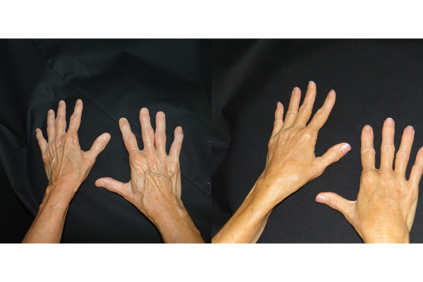 fat-grafting-hands-before-and-after-1-virginia-beach-plastic-surgeon-VA-denk