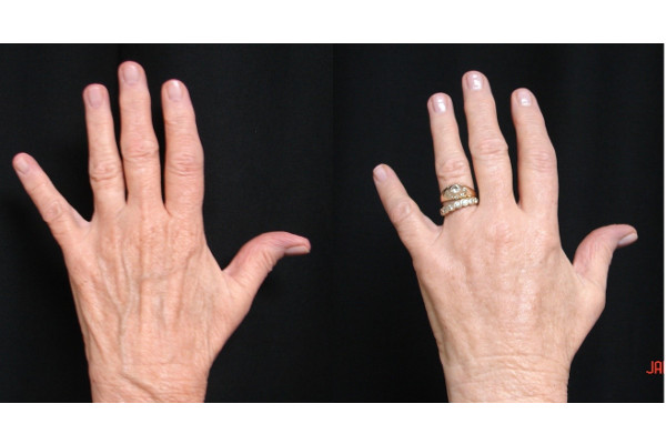 fat-injection-before-and-after-virginia-beach-plastic-surgeon-VA-101-JSA