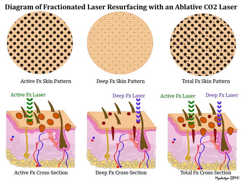 fractionated-laser-diagram-CO2-Laser-Ablative-Virginia-Beach-Plastic-Surgeon