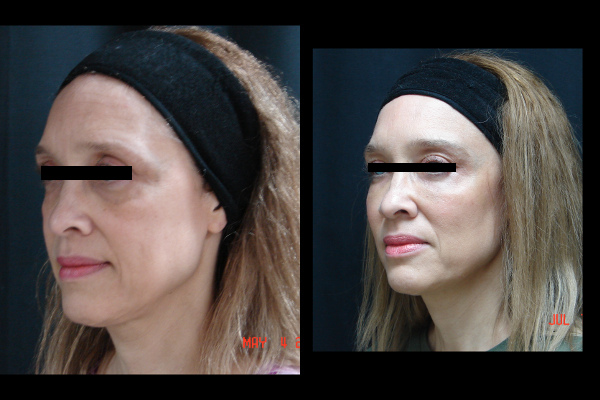 injection-before-and-after-virginia-beach-plastic-surgeon-VA-101-JSA-2