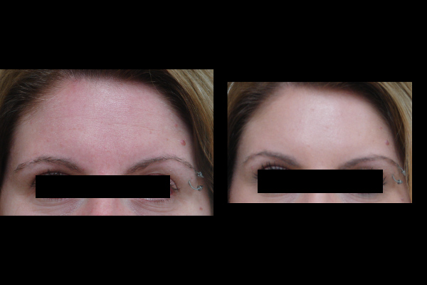 injection-before-and-after-virginia-beach-plastic-surgeon-VA-102-JSA