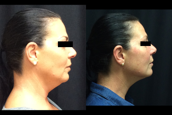 injection-before-and-after-virginia-beach-plastic-surgeon-VA-103-JSA