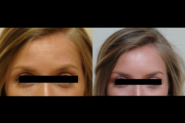 injection-before-and-after-virginia-beach-plastic-surgeon-VA-105-JSA