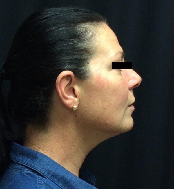 injection-post-op-1-virginia-beach-plastic-surgeon-VA-103-JSA-