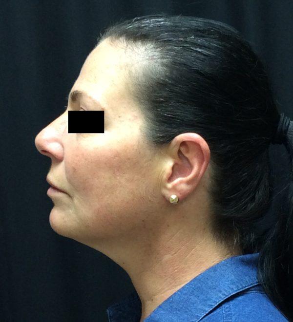 injection-post-op-2-virginia-beach-plastic-surgeon-VA-103-JSA-