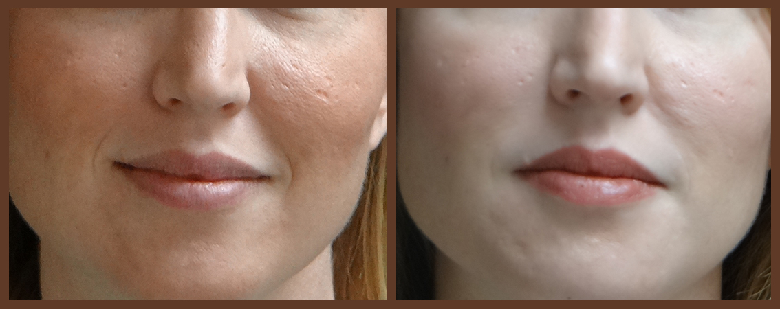 lip-before-and-after-1-virginia-beach-plastic-surgeon-VA-0155-denk