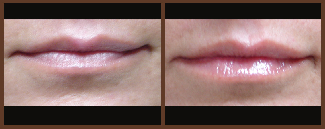 lip-before-and-after-1-virginia-beach-plastic-surgeon-VA-0156-JSA