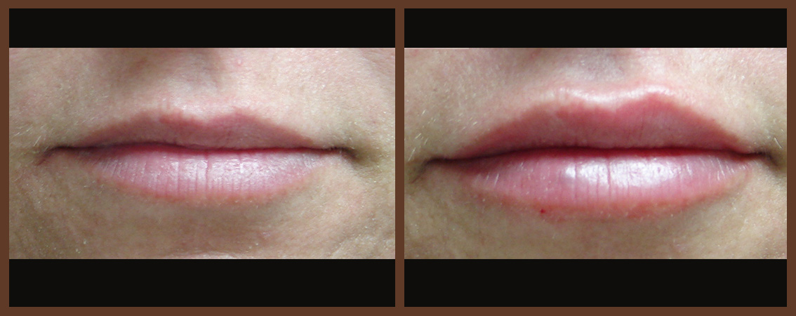 lip-before-and-after-1-virginia-beach-plastic-surgeon-VA-0157-JSA