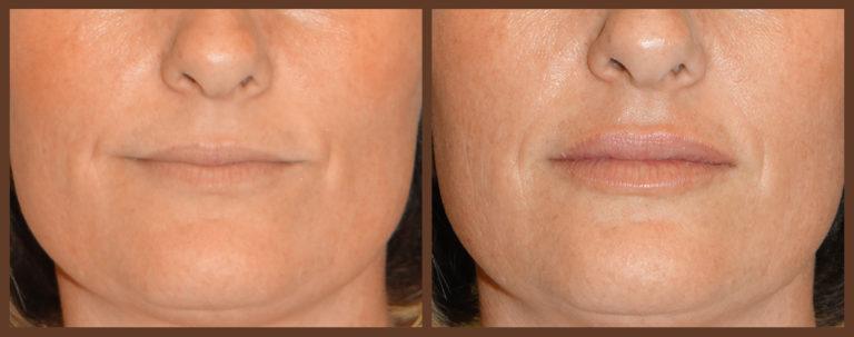 lip-before-and-after-1-virginia-beach-plastic-surgeon-VA-0159-denk