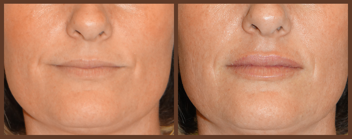 lip-before-and-after-1-virginia-beach-plastic-surgeon-VA-0159-denk