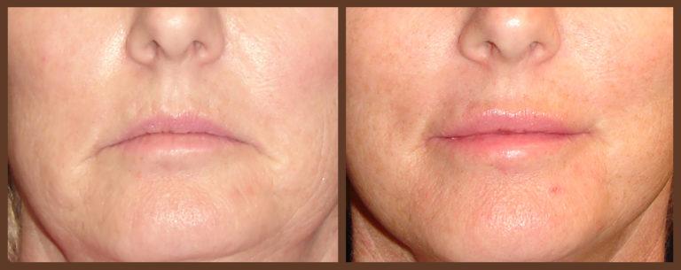 lip-before-and-after-1-virginia-beach-plastic-surgeon-VA-0160-denk
