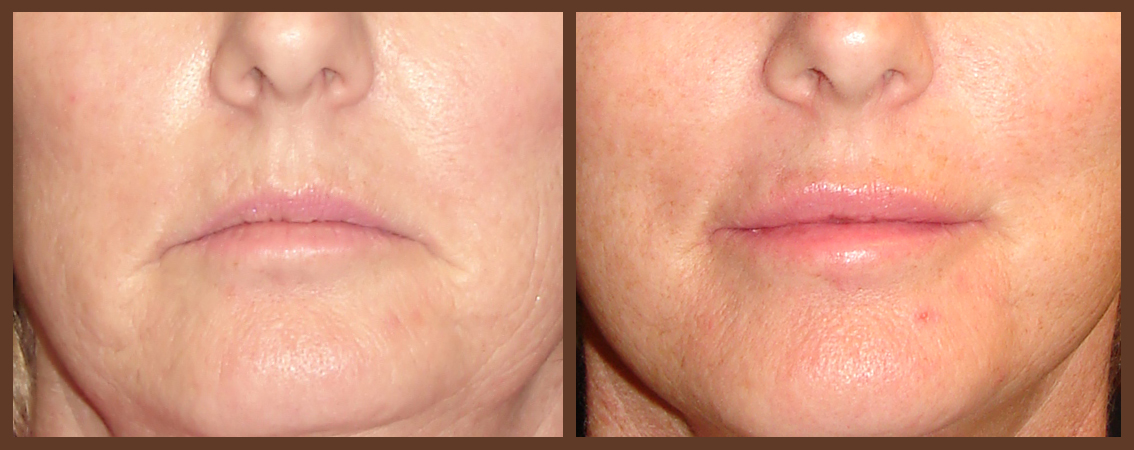 lip-before-and-after-1-virginia-beach-plastic-surgeon-VA-0160-denk