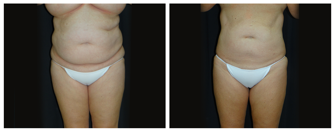 liposuction-before-and-after-1-virginia-beach-plastic-surgeon-VA-0079-denk