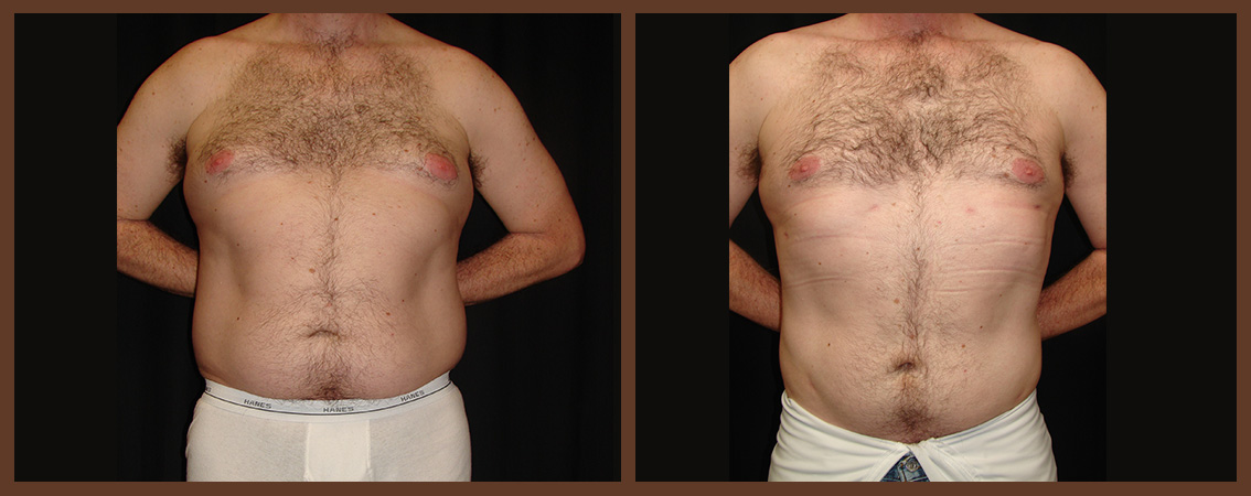 liposuction-before-and-after-1-virginia-beach-plastic-surgeon-VA-0080-denk