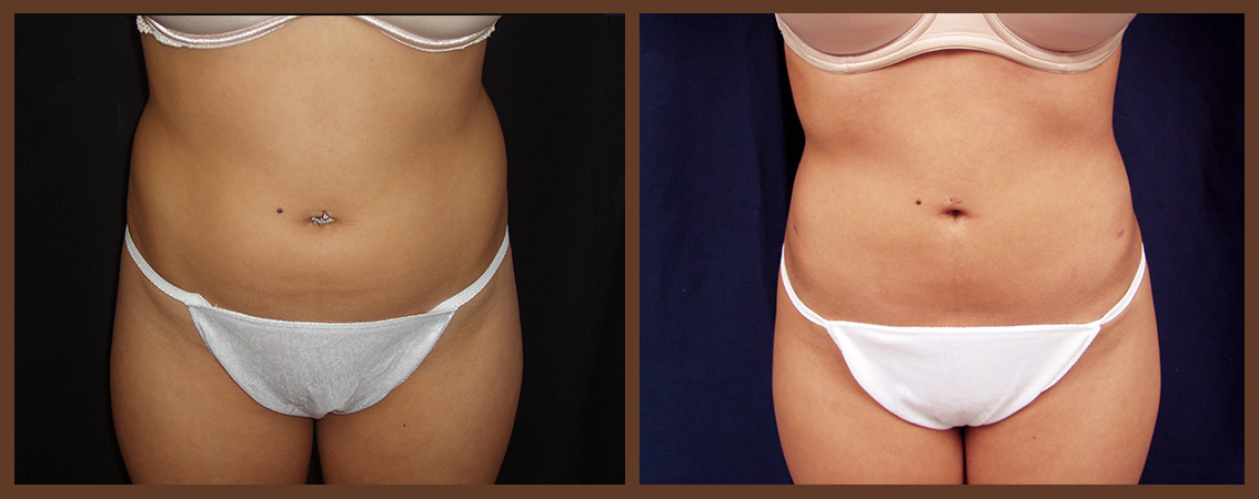 liposuction-before-and-after-1-virginia-beach-plastic-surgeon-VA-0081-denk