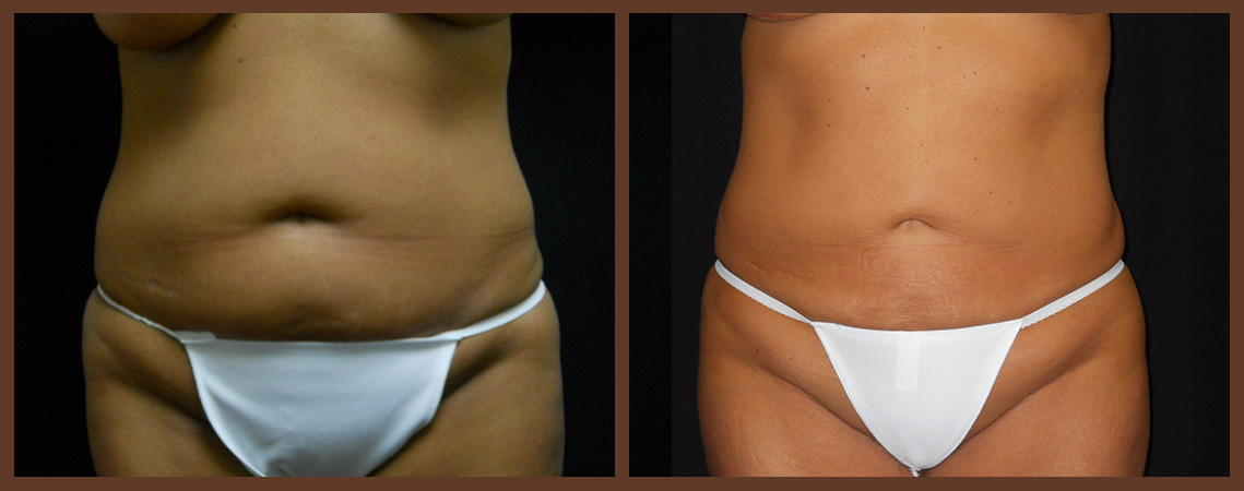 liposuction-before-and-after-1-virginia-beach-plastic-surgeon-VA-0082-jacobs