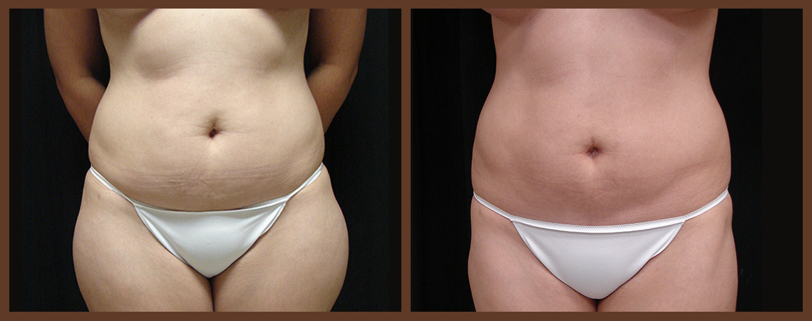 liposuction-before-and-after-1-virginia-beach-plastic-surgeon-VA-0083-jacobs