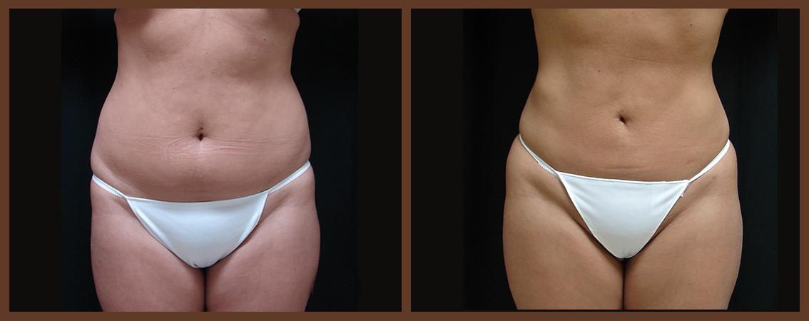 liposuction-before-and-after-1-virginia-beach-plastic-surgeon-VA-0087-JSA
