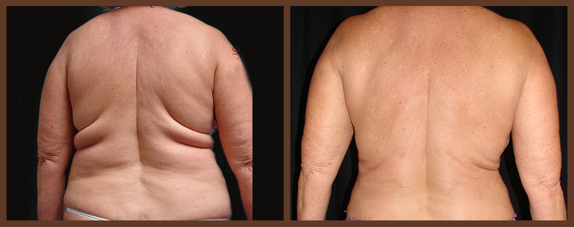 liposuction-before-and-after-1-virginia-beach-plastic-surgeon-VA-0089-jacobs