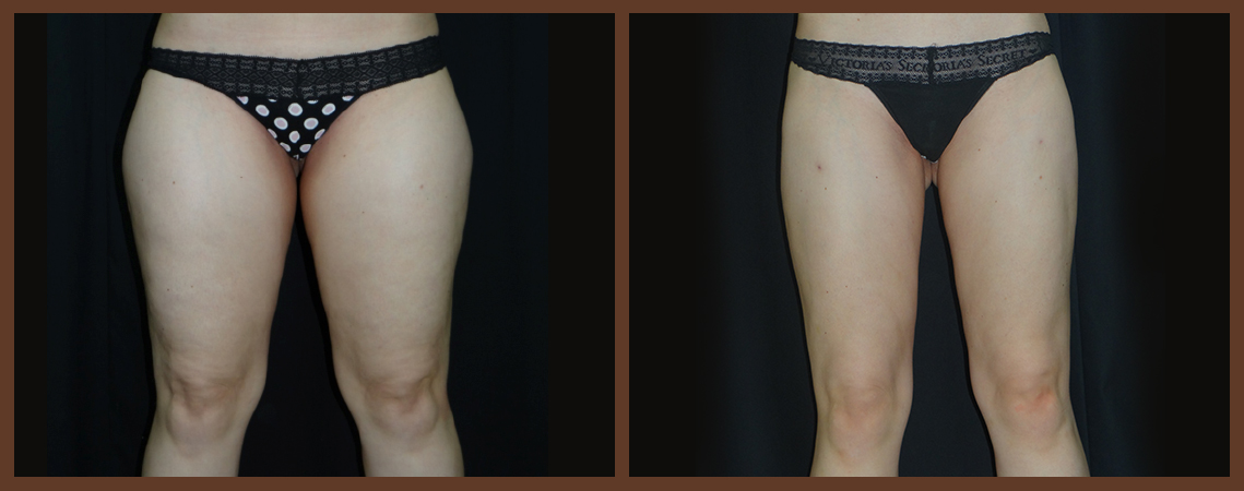 liposuction-before-and-after-1-virginia-beach-plastic-surgeon-VA-0094-denk