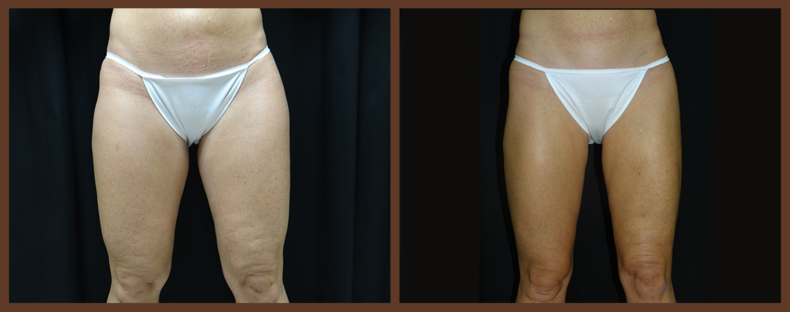 liposuction-before-and-after-1-virginia-beach-plastic-surgeon-VA-0095-denk