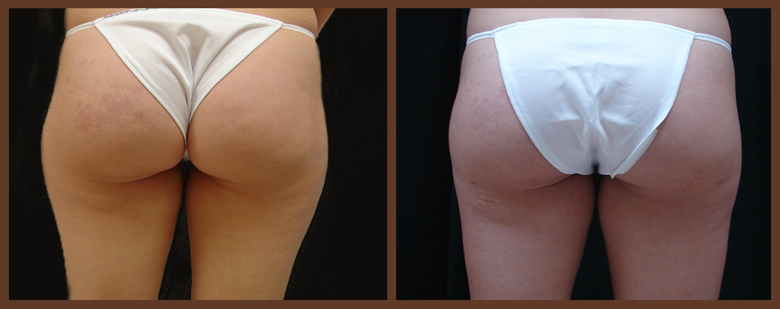liposuction-before-and-after-1-virginia-beach-plastic-surgeon-VA-0096-JSA