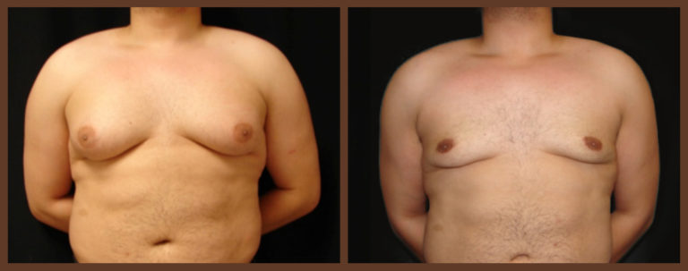 liposuction-before-and-after-1-virginia-beach-plastic-surgeon-VA-0103-jacobs