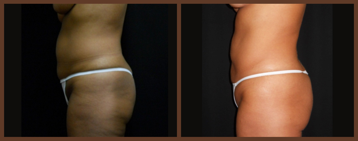 liposuction-before-and-after-2-virginia-beach-plastic-surgeon-VA-0082-jacobs