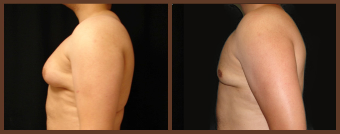 liposuction-before-and-after-2-virginia-beach-plastic-surgeon-VA-0103-jacobs