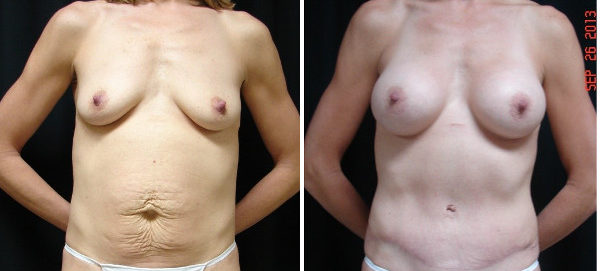 mommy-makeover-before-and-after-1-virginia-beach-plastic-surgeon-VA-JSA