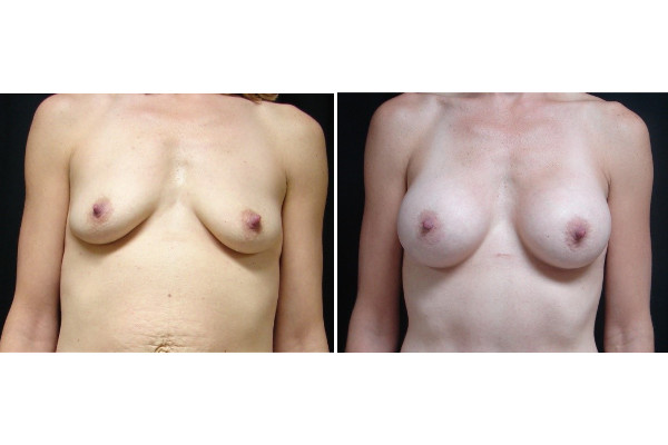mommy-makeover-before-and-after-2-virginia-beach-plastic-surgeon-VA-JSA
