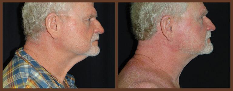 necklift-before-and-after-1-virginia-beach-plastic-surgeon-VA-0116-denk